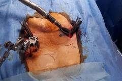 Dr-Parajon-Cirugia-Minimamente-invasiva-051