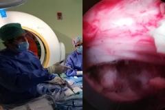 Dr-Parajon-endoscopia-de-columna-04